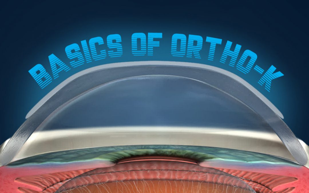 Basics of Ortho-K
